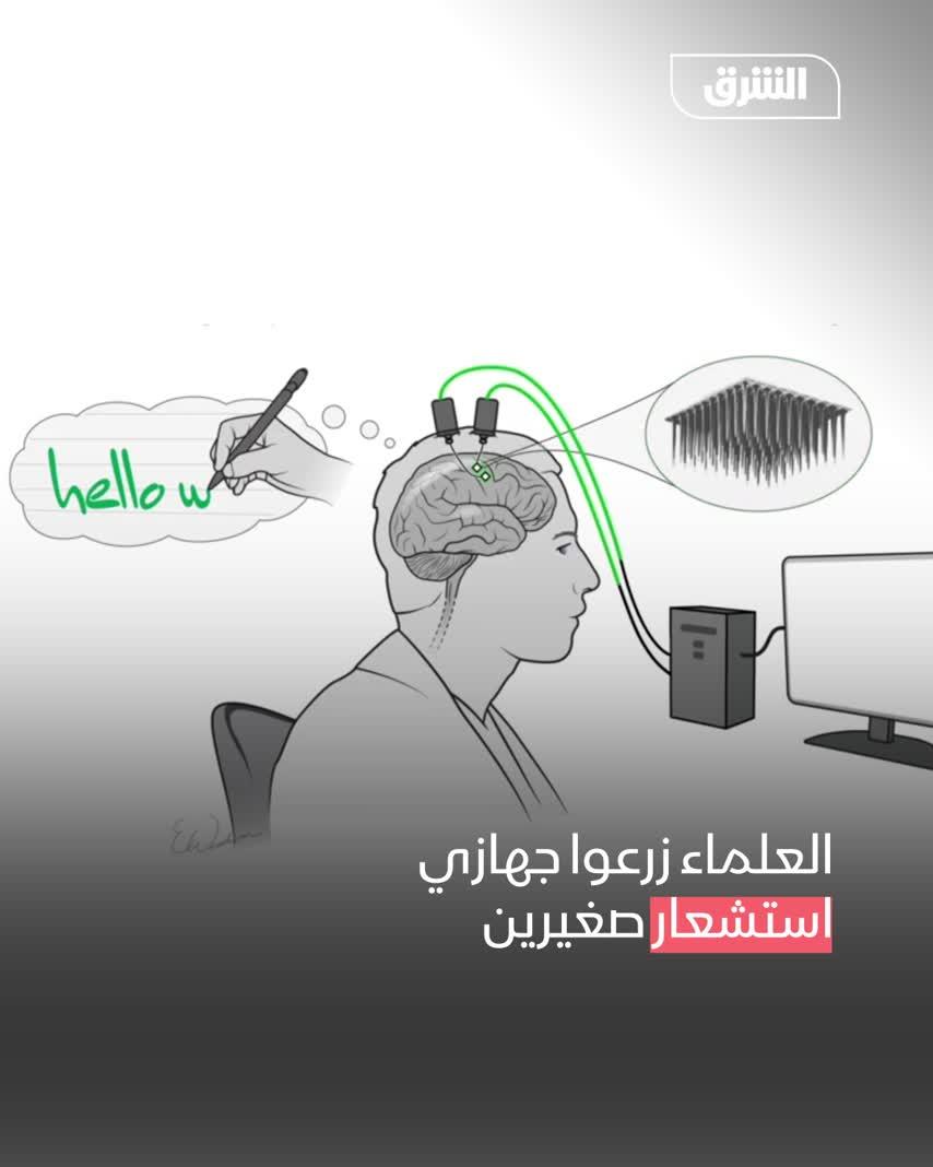 تحويل النص الدماغي للمشلولين إلى جمل