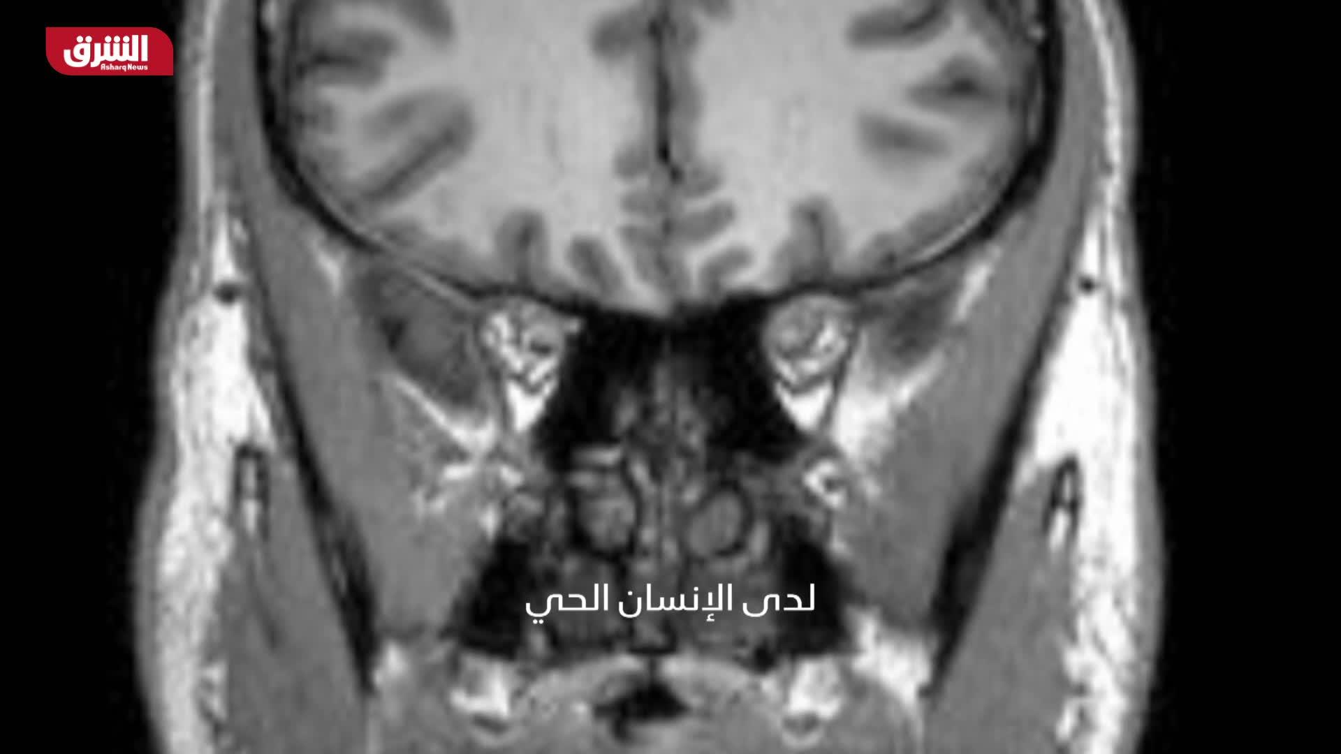العمر المديد - لغز الدماغ